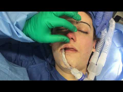Tip refinement, dorsal reduction, alar base reduction rhinoplasty in Caucasian Male with Dr. Hughes