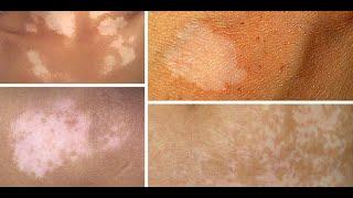 assalamu'alaikum video ini tentang cara mengobati penyakit kulit menahun seperti panu kadas kurap de.