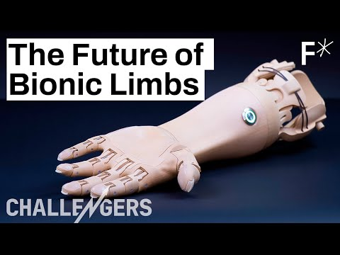 3D Printed, Mind-controlled Prosthetics Are Here | Challengers By Freethink