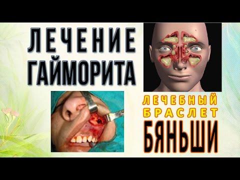 Гайморит - лечение народными средствами в домашних условиях