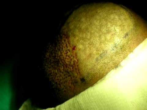 Hospitals in Riyadh-learn about hair trasplantation (FUE) service