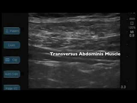 Ultrasound Guided TAP Block - YouTube