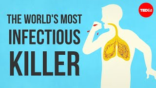 What makes TB the world's most infectious killer? - Melvin Sanicas