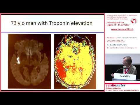 H. Mattle (Bern, CH): The brain-heart-connection: a neurologist's view