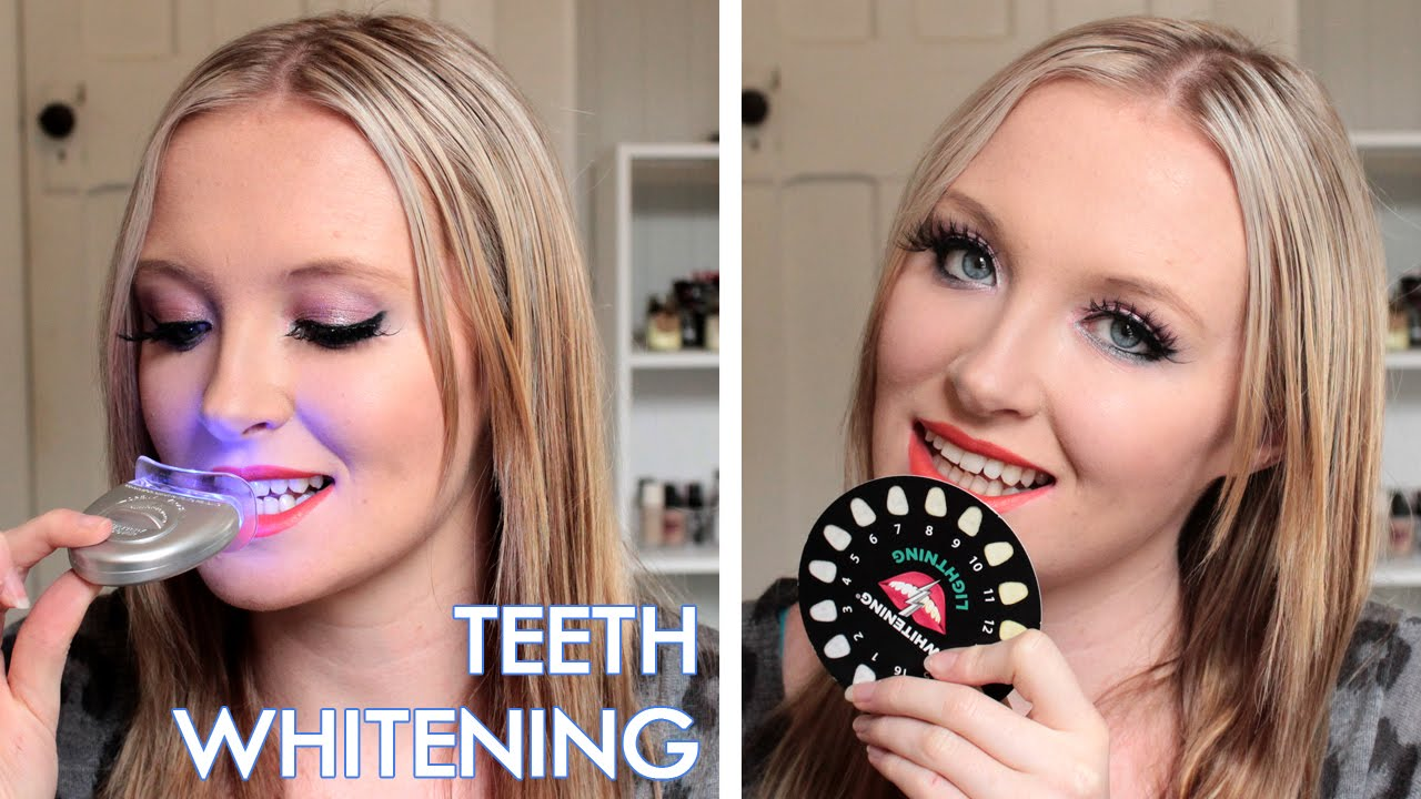 Teeth Whitening Whitening Lightning Is It Worth It Before After Photos Youtube