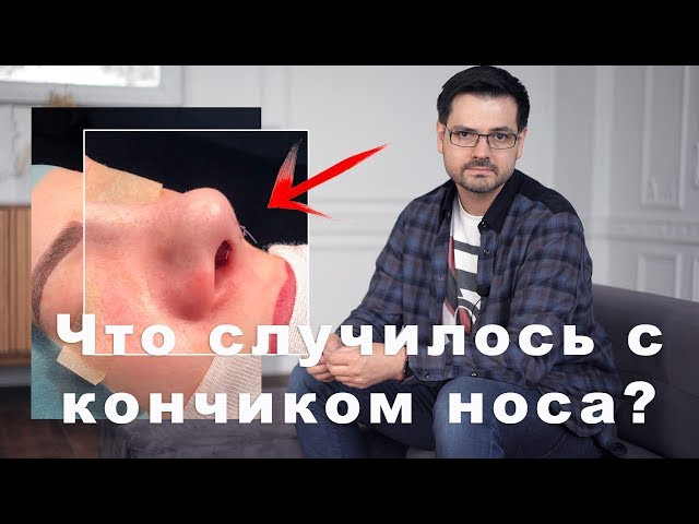 Ринопластика // ДО/ПОСЛЕ  // Секреты в операционной