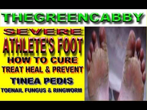SEVERE ATHLETE'S FOOT – HOW TO CURE TREAT HEAL & PREVENT TINEA PEDIS, RINGWORM & TOENAIL FUNGUS