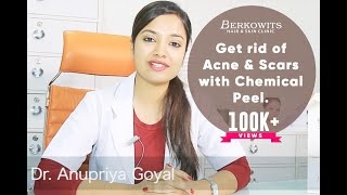 Chemical Peel for Acne Scar and Microneedling Skin Peeling Treatment