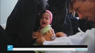 طفل يموت من الجوع كل 10 دقائق في اليمن