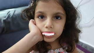 ايش صار بأسنانها -طاحو اسنانها | حلويات الأسنان |