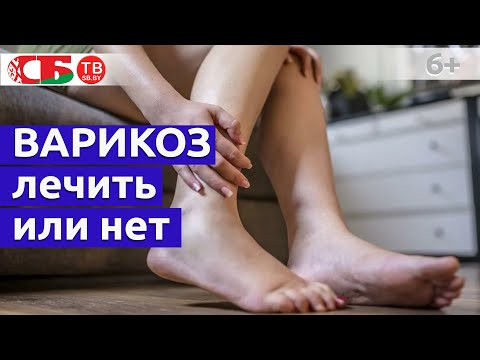 Нужно ли лечить варикозное расширение вен | конечностей | расширение | варикозное | варикоза | лечение | варикоз | нижних | мужчин | женщин | ногах