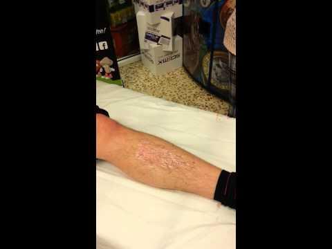 Leg waxed for diabetes trust.