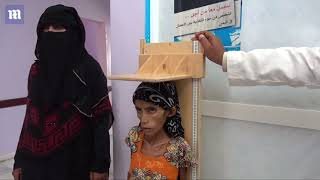 Starving girl shows the effects of the Yemen war on people