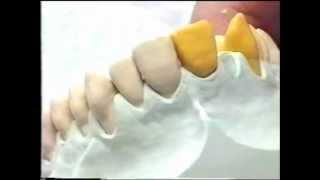 Для зубного техника. Восковое моделирование.(Видео для зубного техника по восковому моделированию от мастеров Германии. http://www.stomatologs.ru/ Учебный Центр..., 2012-11-13T14:40:05.000Z)