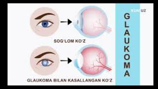 #Ko'z_kasalliklari #tabiiy_yol_bilan_davolash #kuzni_davolash #glaukoma