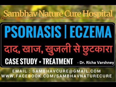 Psoriasis and Eczema treatment at Home | Natural Remedies video in hindi