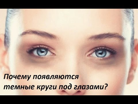 Все обо всем - Почему появляются темные круги под глазами?