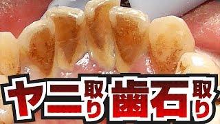 [膿がスゴい]ヤニ取り~歯石取り[Tartar removal][喫煙者]歯石Vol.6(去除煙垢去除牙石)