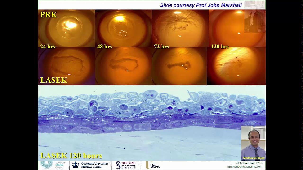 Download Photorefractive Keratectomy (PRK, LASEK, Epi-LASIK, ASA, TransPRK) - Surgeon Training Video