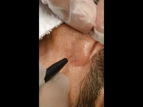 how to remove spider veins on nose