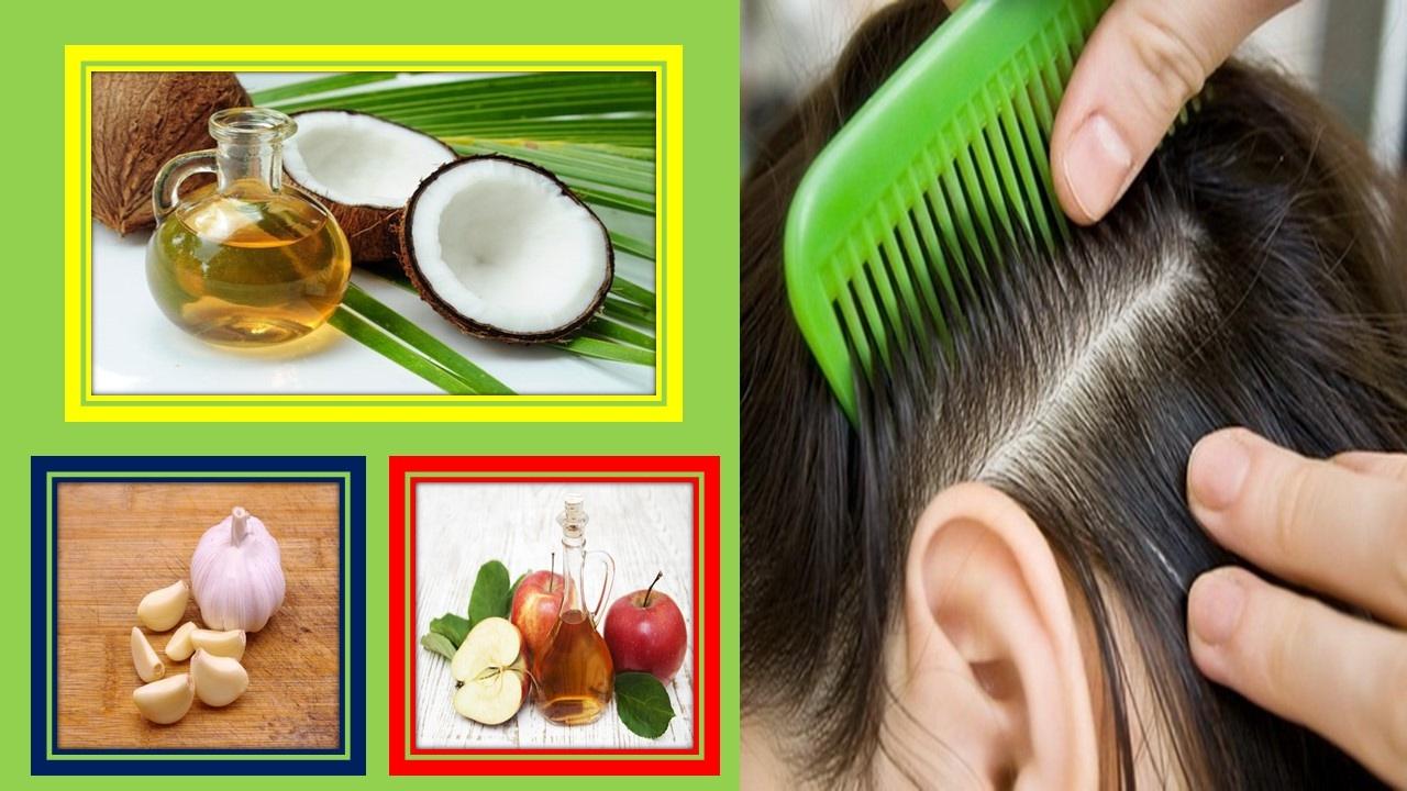 remedios caseros para prevenir los piojos y liendres
