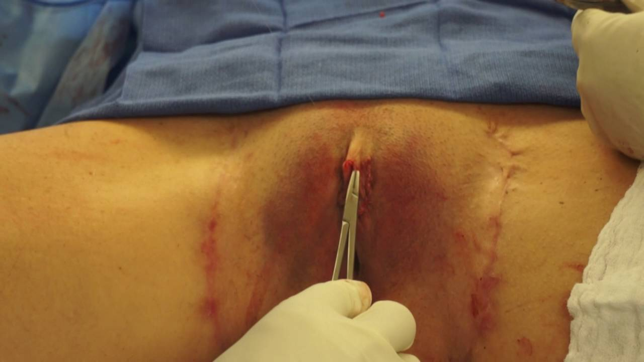 Piercing removing clit
