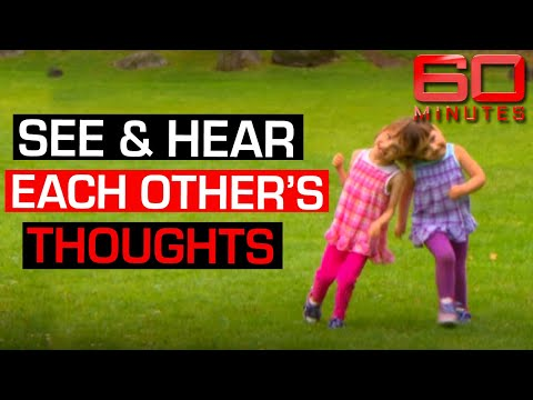 Conjoined twins share taste, sight, feelings and thoughts | 60 Minutes Australia