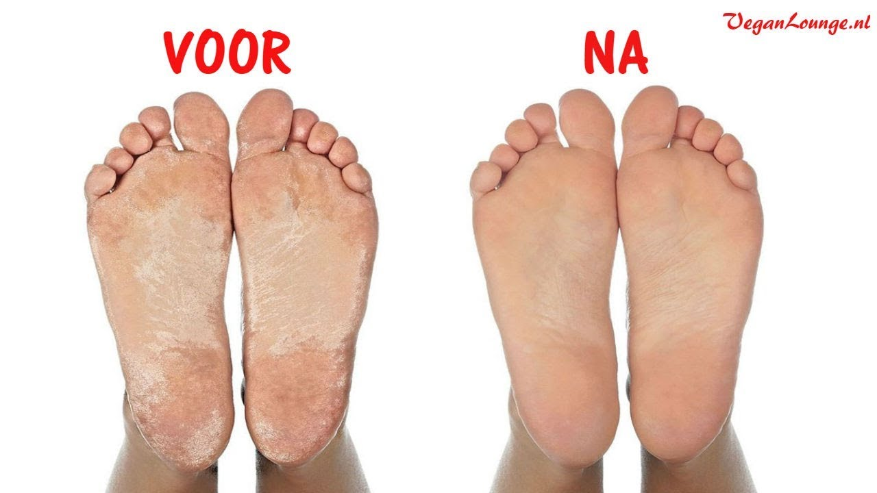 voeten likken pics