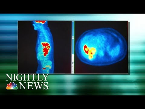 Colon Cancer Deaths Rising For Young, White Americans | NBC Nightly News
