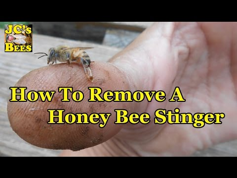 How To Properly Remove A Honey Bee Stinger