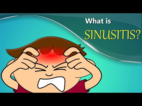 What is Sinusitis? | #aumsum