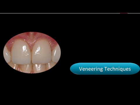 Continuing dental education - Catch the Composite Wave