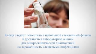 Профилактика укусов клещей(, 2015-07-01T07:34:18.000Z)