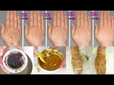 How to make your hands look 5 years younger | Wrinkle free smooth fair hands