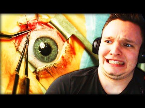 BLOß NICHT BLINZELN!!   Augenoperation