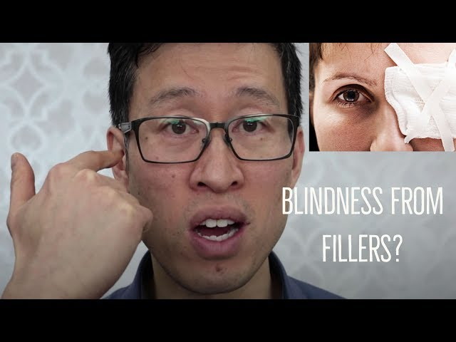 Blindness following dermal fillers? How does this happen and what can be done?