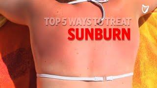 Top 5 Ways to Treat Sunburn