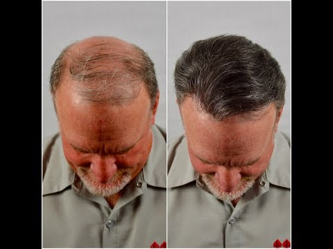 non-surgical-hair-replacement-service-before-and-after