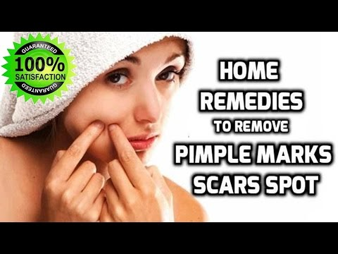 how-to-remove-pimples-fast-at-home-||-8-quick-home-remedies-to-remove-acne-overnight