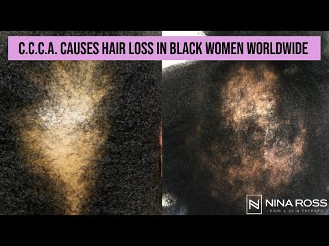 What Is CCCA? Central Centrifugal Cicatricial Alopecia Is A Common Cause Of Hair Loss In Black Women