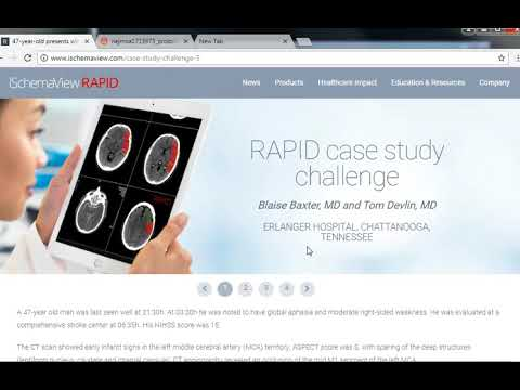 CT perfusion using RAPID software for Stroke