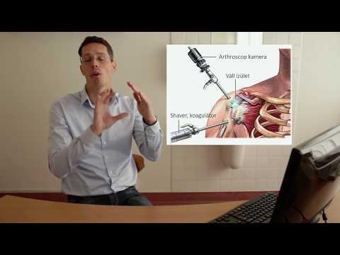 a sarok kezelése ízületi gyulladás hogyan lehet kezelni a jobb vállízület ízületi gyulladását