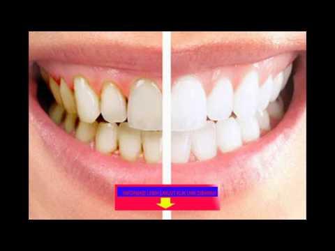 cara-membersihkan-karang-gigi-secara-cepat-dan-mudah-konsultasi-invite-589579ad