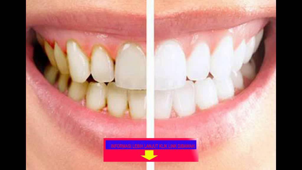 Cara Membersihkan Karang Gigi Secara Cepat Dan Mudah Konsultasi