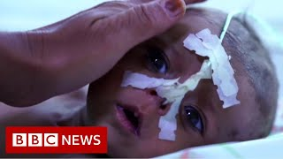 Afghan baby girl sold for $500 by starving family - BBC News