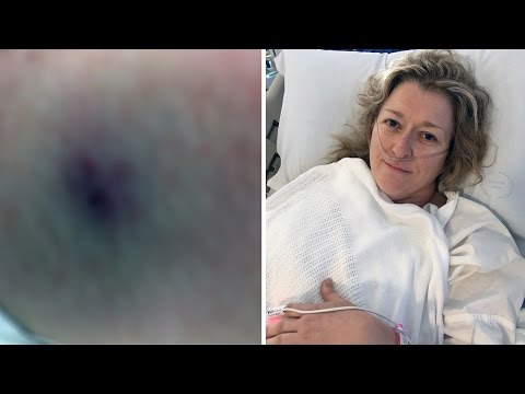 Mother Talks About Surviving Funnel Web Spider Bite