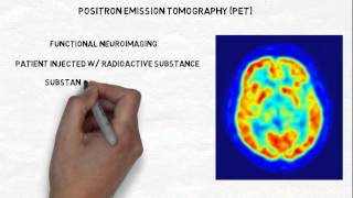 2-Minute Neuroscience: Neuroimaging