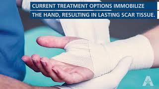 UTA Impact: ReHeal Glove