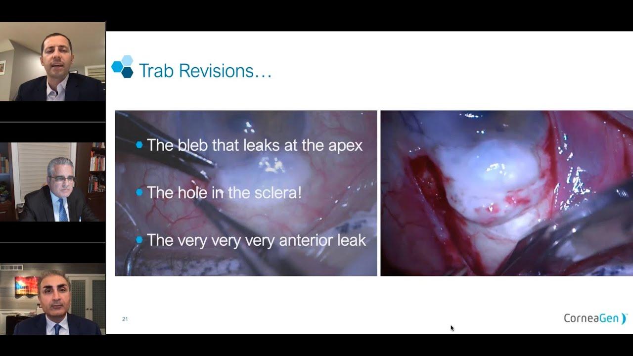 Glaucoma Tube Shunt Coverage with VisionGraft