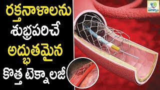 New Technology Can Completely Clean Arteries - Health Tips in Telugu    Mana Arogyam